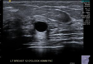 Ultrasound for the breast